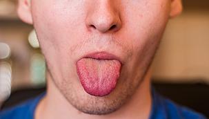Dil Hücrelerinin Mutasyona Uğraması Sonucu Kanser Hücrelerinin Oluşması: Dil Kanseri