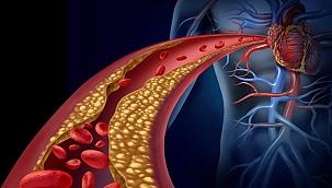 Yüksek kolesterollü hastalara yeni umut